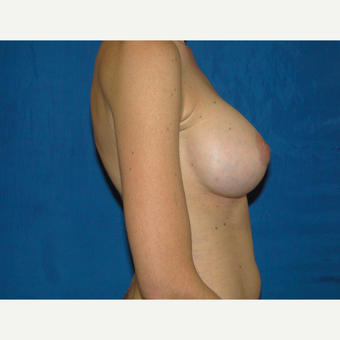 Breast Augmentation with 500 cc Silicone Implants after 3495773