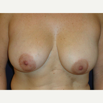 35-44 year old woman treated with Breast Augmentation before 3075880