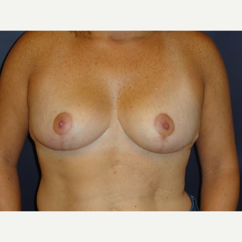 35-44 year old woman treated with Breast Augmentation after 3075880
