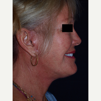 65-74 year old woman treated with Facelift after 3082361