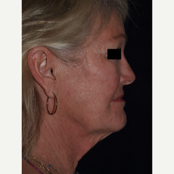 65-74 year old woman treated with Facelift before 3082361