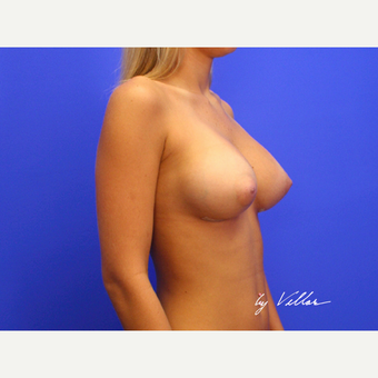 25-34 year old woman treated with Breast Implants after 3499719