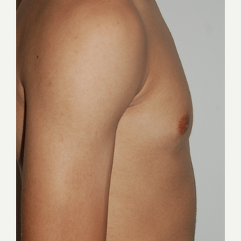 18-24 year old man treated with CoolSculpting after 1570544