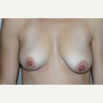 45-54 year old woman treated with Breast Lift for asymmetry before 3231628