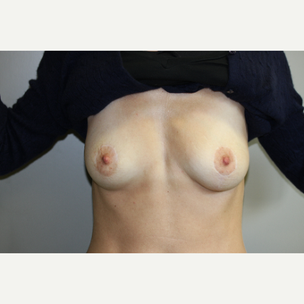45-54 year old woman treated with Breast Lift for asymmetry after 3231628