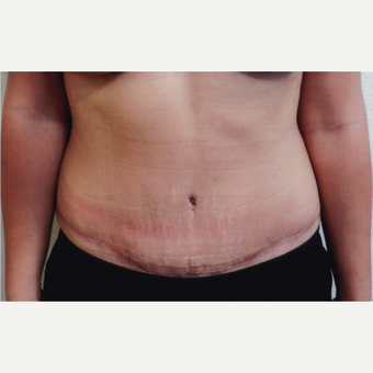 25-34 year old woman treated with Tummy Tuck after 3128582