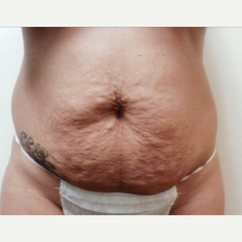 25-34 year old woman treated with Tummy Tuck before 3128582