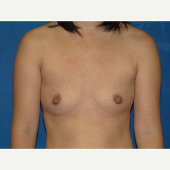 Breast Augmentation with 375 cc Silicone Implants before 3850736