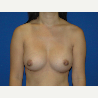 Breast Augmentation with 375 cc Silicone Implants after 3850736