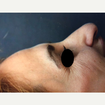 35-44 year old woman treated with Rhinoplasty before 3211385