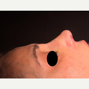35-44 year old woman treated with Rhinoplasty after 3211385