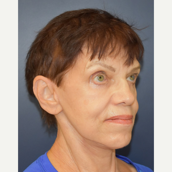 65-74 year old woman treated with Facelift after 3449011