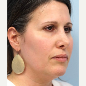 45-54 year old woman treated with Revision Rhinoplasty before 3686798