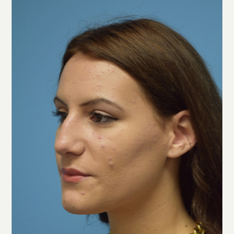 18-24 year old woman treated with Rhinoplasty before 3482877