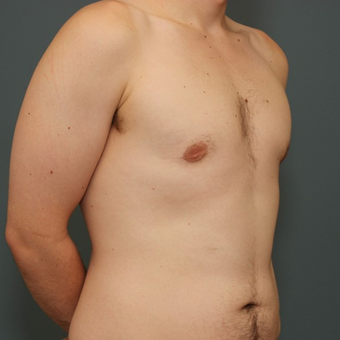 25-34 year old man requesting Male Breast Reduction after 3346434