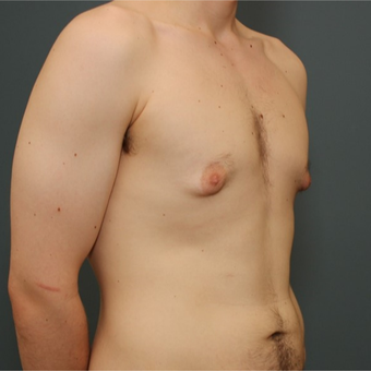 25-34 year old man requesting Male Breast Reduction before 3346434