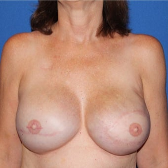 45-54 year old woman treated with Breast Reconstruction after 1984849