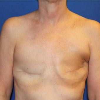 45-54 year old woman treated with Breast Reconstruction before 1984849