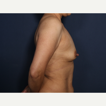 45-54 year old woman treated with Breast Augmentation (view 2 of 2) before 3286892