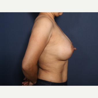 45-54 year old woman treated with Breast Augmentation (view 2 of 2) after 3286892