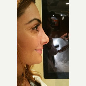 25-34 year old woman treated with Rhinoplasty after 3687116
