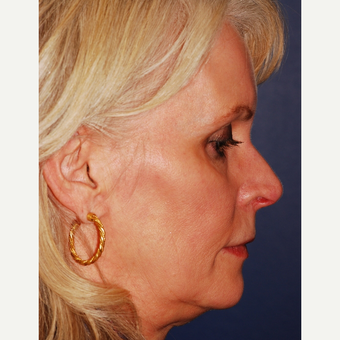 55-64 year old woman treated with Facelift before 3625233