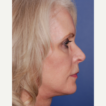 55-64 year old woman treated with Facelift after 3625233