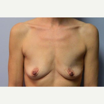 50 year old woman treated with Breast Augmentation before 1922568