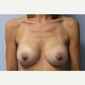 50 year old woman treated with Breast Augmentation after 1922568