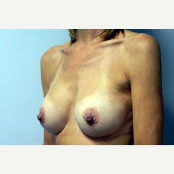 50 year old woman treated with Breast Augmentation 1922568