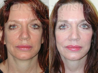 Mid 50s Female Cheek Augmentation with Implants before 1384585