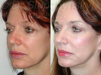 Mid 50s Female Cheek Augmentation with Implants 1384585