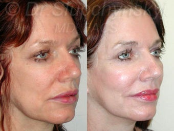 Mid 50s Female Cheek Augmentation with Implants after 1384585