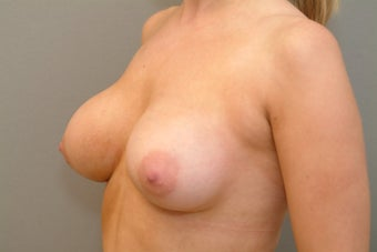 25-34 year old woman treated with Breast Implant Revision after 2930667
