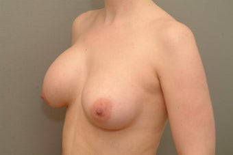 25-34 year old woman treated with Breast Implant Revision before 2930667