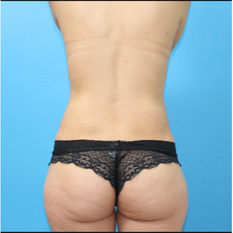 25-34 year old woman treated with Brazilian Butt Lift after 3380454