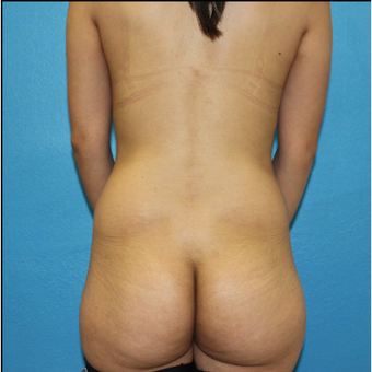 25-34 year old woman treated with Brazilian Butt Lift before 3380454