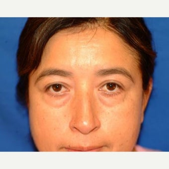35-44 year old woman treated with Eyelid Surgery before 1604613