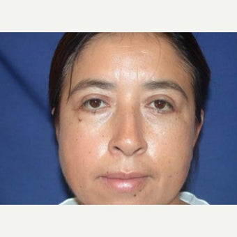 35-44 year old woman treated with Eyelid Surgery after 1604613