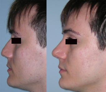 Tip With Inadequate Projection: T.I.P. , seen in Asian Rhinoplasty Patient