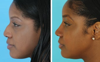 African American rhinoplasty before 1675498