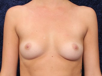 23 Year Old Female Wanted Larger Breasts before 1490770