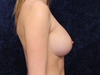 23 Year Old Female Wanted Larger Breasts 1490770