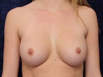 23 Year Old Female Wanted Larger Breasts after 1490770