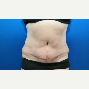 45-54 year old woman treated with Tummy Tuck, Scar Revision, and Hernia Repair after 3104906