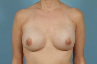 Breast Reconstruction after Bilateral Mastectomy after 553669