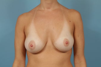 Breast Reconstruction after Bilateral Mastectomy before 553669