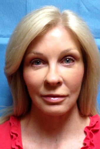 Facelift, Browlift with Autologous Fat Transfer as marked
