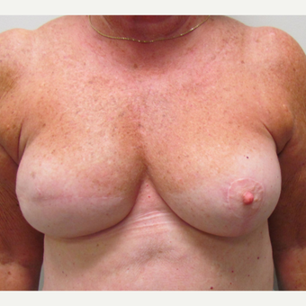 Breast Reconstruction for This 74 Year Old Woman after 3387171