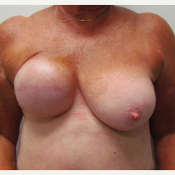 Breast Reconstruction for This 74 Year Old Woman before 3387171